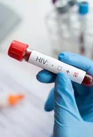 Когда у анализа на ВИЧ ложный результат?