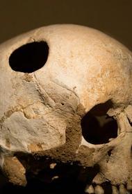 Загадка черепа с дыркой, непредусмотренной нормальной анатомией