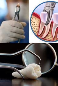Стоматолог Наталья Кадькалова: как понять, нужно ли удалять зуб