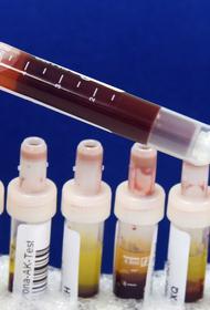 В России за сутки выявили 4 744 новых случая заражения коронавирусом