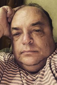 Глава Минздрава Саратовской области Олег Костин со слезами на глазах рассказал, как будет бороться с лишним весом