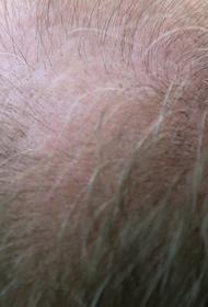 Трихологи Гаджигороева и Ткачев сообщили, что выпадение волос у мужчин не всегда приводит к лысине