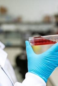 Врач Хирахата предупредил о серьёзных последствиях лёгкой формы коронавируса вплоть до лежачего состояния