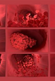 Кардиолог Беленков перечислил признаки тромбоза головного мозга