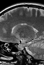 NYT: повреждения мозга выявлены у некоторых представителей США за рубежом