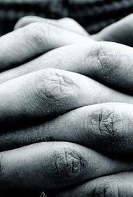 Американские врачи утверждают, что развитие диабета можно определить по коже на руке