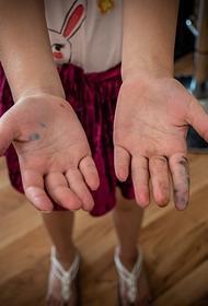 В Челябинской области дети и подростки стали чаще болеть кишечными инфекциями
