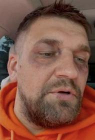 «Собака укусила за лицо»: Баста показался в кадре с синяками