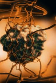 Выявлен механизм терапии опухолей
