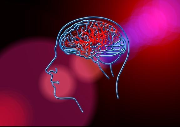 Российский учёные назвали отличительные  факторы риска развития инсульта у мужчин и у женщин