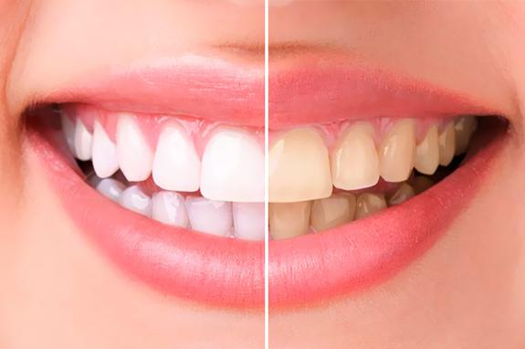 Научная лаборатория WDS предупредила южноуральцев об опасности отбеливания зубов