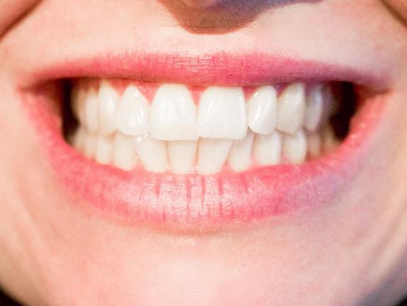 Зубная нить может оказаться опасной для здоровья