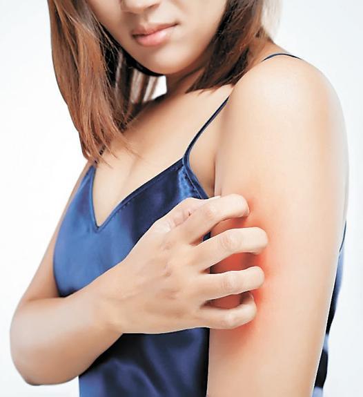 Недуг, поражающий кожу