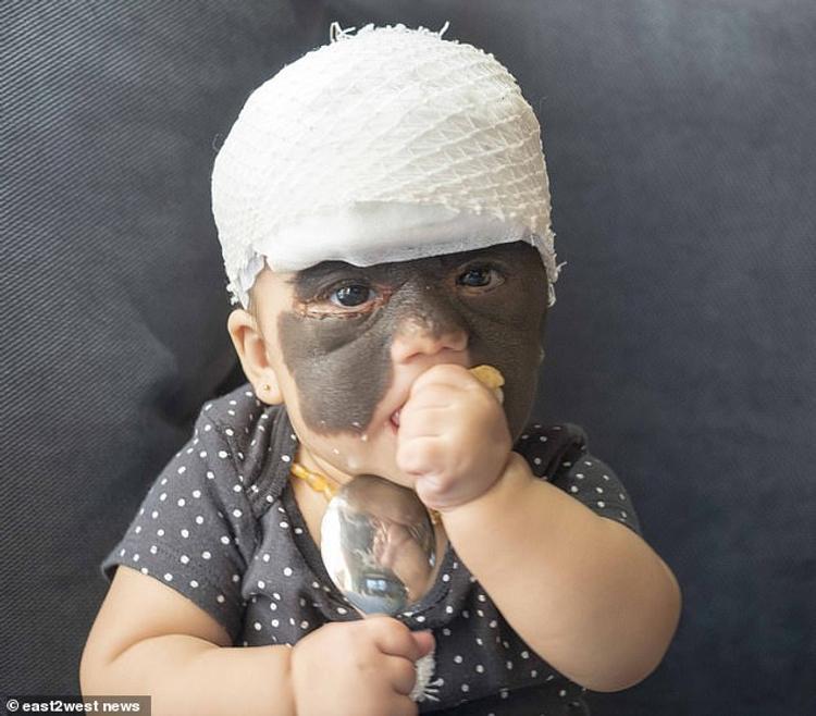 Мама девочки из США,  которой удаляют родимое  пятно с  лица в Краснодаре,  обратилась к россиянам