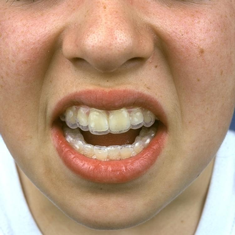 Мода на цвет зубов поменялась. Новость от Жанны Бадоевой