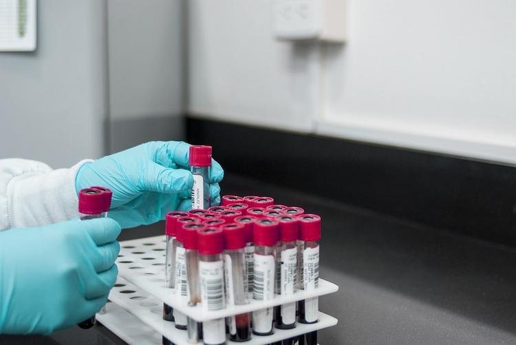 У итальянских ученых получилось изолировать коронавирус