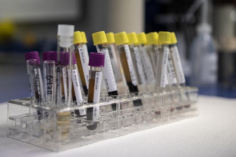 В Твери госпитализирован мужчина с подозрением на коронавирус