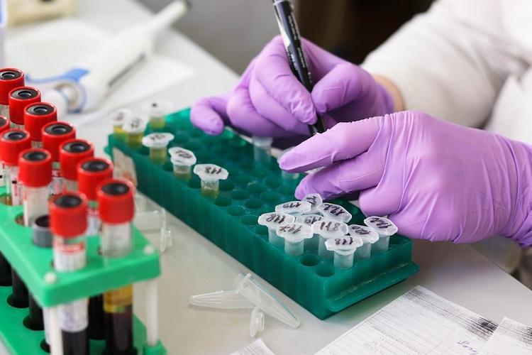В Москве за сутки зафиксировано 114 случаев заражения коронавирусом