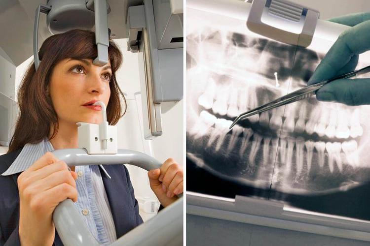Зачем делать снимок челюсти на приеме стоматолога
