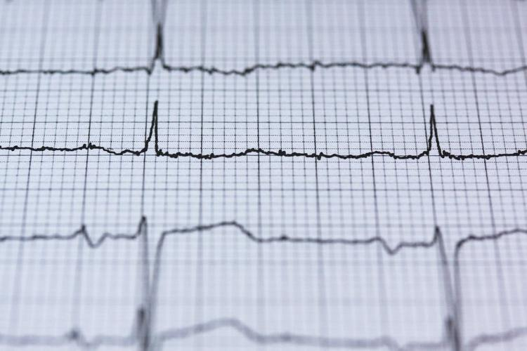 Кардиохирург рассказал о влиянии заражения коронавирусом COVID на сердце