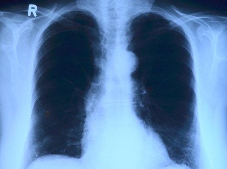 Пульмонолог рассказал, что может происходить с легкими после заражения COVID-19