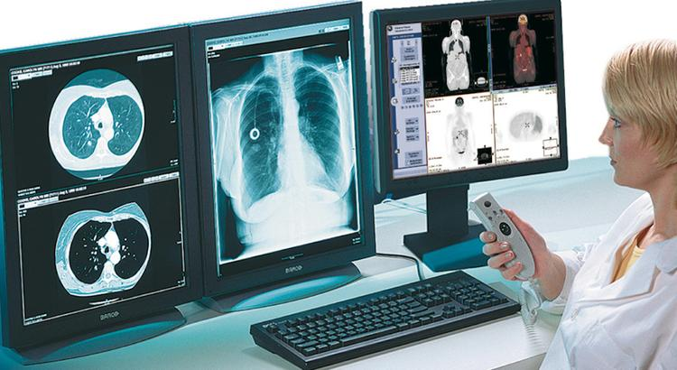 Собянин рассказал о диагностике COVID-19 с помощью искусственного интеллекта
