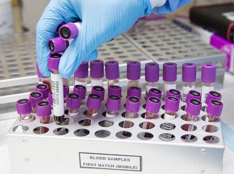 Власти Якутии сообщили об ухудшении ситуации с коронавирусом