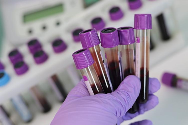 За сутки в России скончались 174 пациента с коронавирусом