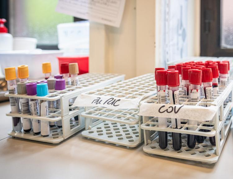 За сутки в РФ зафиксирован самый высокий показатель смертности от COVID-19 с начала эпидемии