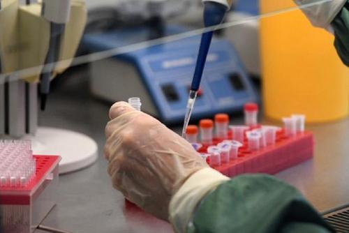 В Белоруссии изменили порядок тестирования на коронавирус