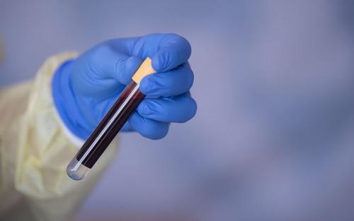 На Украине количество выявленных случаев COVID-19 выросло до 24 340