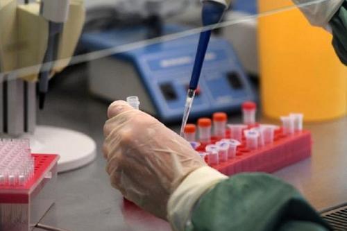 В ВОЗ не смогли объяснить низкую смертность от коронавируса в России