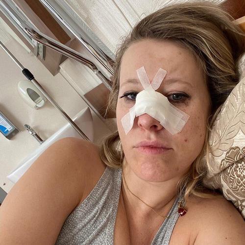 «Я в больнице, только что сделали операцию», Собчак сообщила, что у нее перелом носа и сотрясение