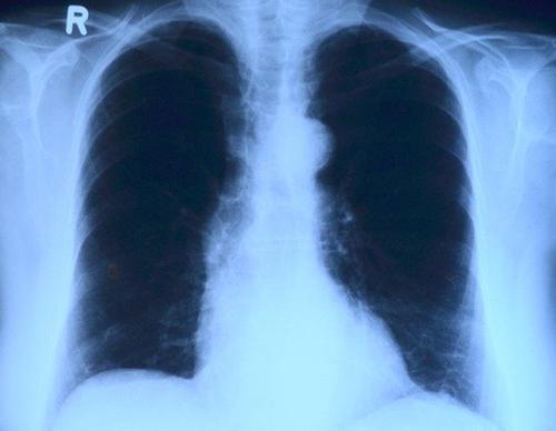 Пульмонолог рассказал о способах восстановления легких после коронавируса