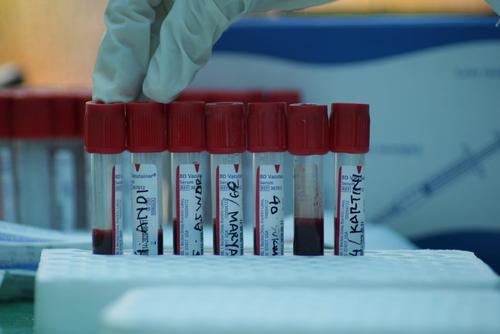 В России за сутки выявили 6 611 случаев заражения COVID-19