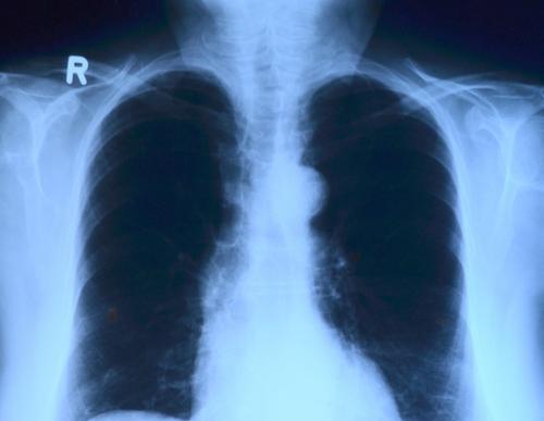 Главный онколог Минздрава перечислил ранние признаки рака, которые должны насторожить