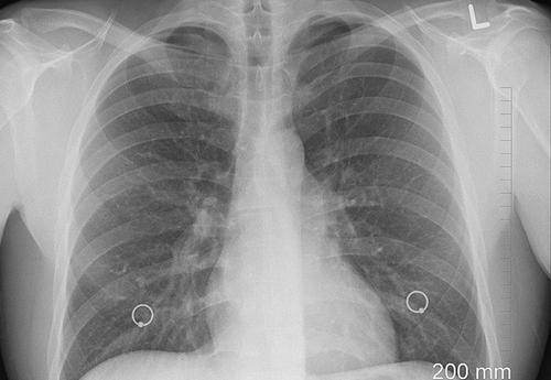 Врач-пульмонолог Пурясев заявил, что кашель и одышка являются первыми признаками поражения легких