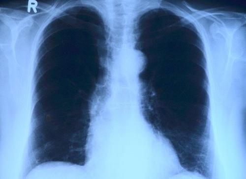 Иммунолог Жемчугов посоветовал переболевшим COVID-19 заниматься йоговской дыхательной гимнастикой