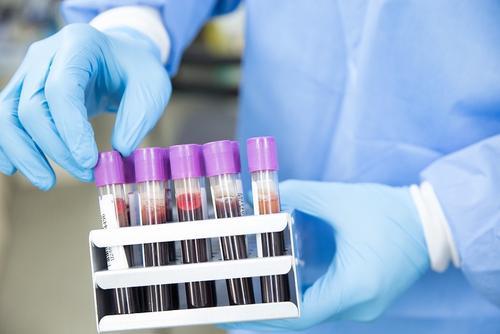 В России за сутки скончались 569 пациентов с коронавирусом