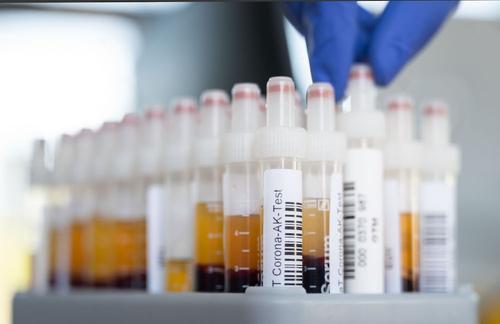 В России за сутки скончался 561 пациент с COVID-19