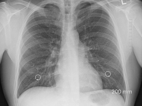 Эпидемиолог Горелов рассказал, кто чаще всего умирает от пневмонии