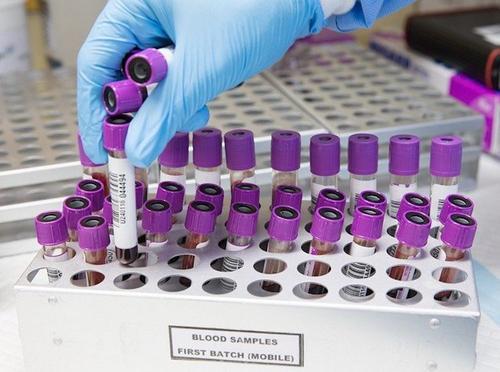 В мире за сутки выявили более 326 тысяч случаев заражения COVID-19