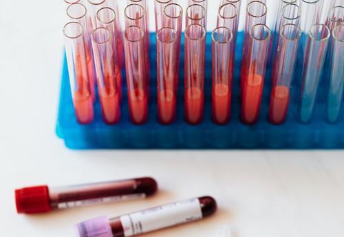 Шведские ученые нашли связь между серьезными заболеваниями и группой крови