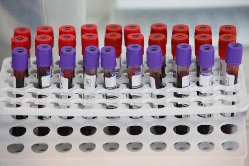 В Германии за сутки выявили более 15 тысяч случаев заражения COVID-19