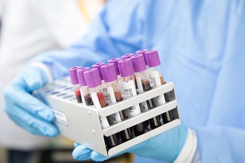 В России за сутки выявили 8 554 случая заражения коронавирусом