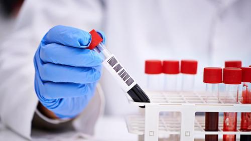 Пандемия увеличила выручку медлабораторий в несколько раз