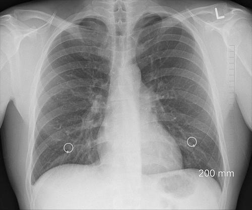 Мясников заявил, что после перенесенного коронавируса существует риск развития рака легких
