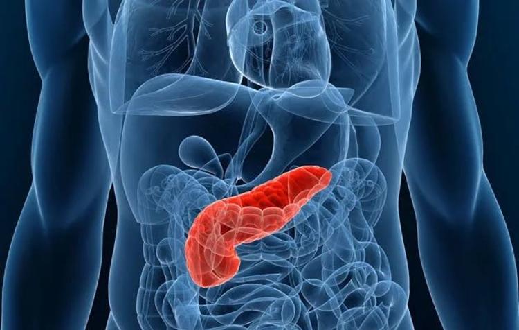 Рак поджелудочной железы выдают пузырьки