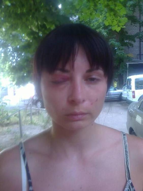 Human Rights Watch обвинила СБУ в пытках женщины