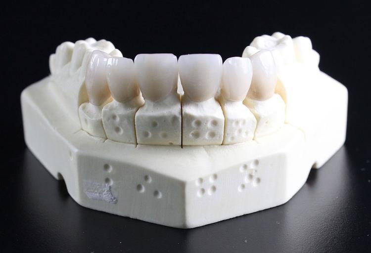 В США рабочие обнаружили более тысячи человеческих зубов в стене дома